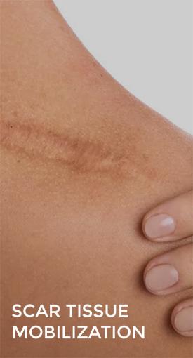 scar tissue mobilization